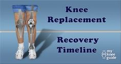 Recovery from knee replacement surgery can be full of challenges along the way. We find that the patients who know what to expect after surgery, generally have excellent perspective on their progress and feel less anxious during their recovery period.