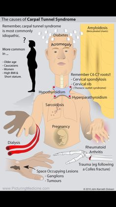 Carpel Tunnel Syndrome, Carpal Tunnel Exercises, Carpal Tunnel Relief, Cervical Spondylosis, Pharmacology Nursing, Massage Benefits, Naturopathy, Dialysis, Light Therapy