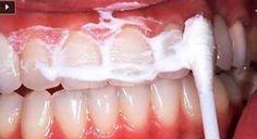 Rincez votre bouche pendant 60 secondes avec ce mélange et éliminez le tartare et la plaque de vos dents!
