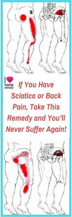 Sciatica and Back Pain Remedy