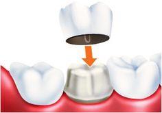Коронки на зуб