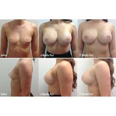 Breast Augmentation Progress pics! Before, 6 months and 12 Month post surgery   This lovely client had surgery in Bangkok with 400cc, Under the Muscle, High Profile placement, Round, Cohesive Silicone Implants.  For more information about travelling to Thailand for surgery call us on 1300 000 MED   #cosmeditour #breastaugmetation #breastimplants #cosmeticsurgery #plasticsurgeon #thailand #bangkok #medicaltravel #medicaltourism #boobinspo