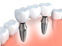 Implant działa tak, jak korzeń własnego zęba. Nie czujesz między nimi różnicy. Implanty wykonuje się z materiałów biokompatybilnych. Dzięki temu są dobrze tolerowane przez Twój organizm.