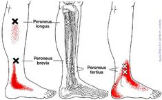 Trigger points for the peroneus longus Peroneus Longus, Shin Splints, Trigger Points, Health And Fitness Tips, Massage Therapy, Muscles, Fabrics, Dots, Acupuncture