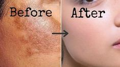Today I will share 1 week remedy that will remove all spots, blemishes, pigmentation from your skin. Excessive melanin production and sun exposure is that main reason behind dark spots on your skin but with this remedy you can easily erase all these spots from your skin For this you will need Cleansing milk, this …