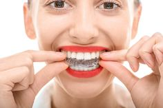 Don't hide your ‪#‎smile‬ because of your ‪#‎dentalbraces‬. Switch to invisible braces from traditional braces!!!