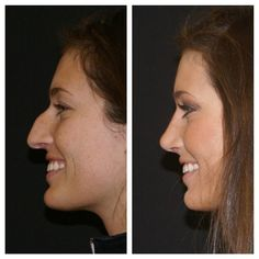 Dr mike nayak st louis mo facial plastic surgery rhinoplasty performed in maquiagem transformao Acne On Nose, Remove Blackheads From Nose, Blackheads On Nose, Dr Mike, Nose Plastic Surgery, Nose Surgery, Nose Reshaping, Rhinoplasty Before And After, Beauty Hacks