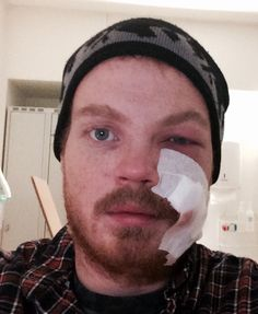 Infection after surgery. Got randomly hit and broke a bone in the eye socket.