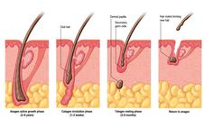hair loss , hair cycle , hair growth pattern , hair loss can be due to many reasons  Visit to the website to understand more