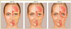 Facial fat age. Why and how does underlying fat change and shift as we age.