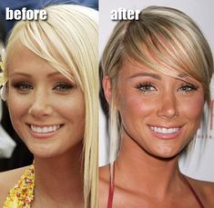 Before and After Plastic Surgery - Sara Underwood - liposuction plastic surgery Plastic Surgery Before After, Plastic Surgery Gone Wrong, Bad Plastic Surgeries, Plastic Surgery Photos, Lip Implants, Sara Underwood, Eyelid Surgery, Celebrities Before And After, Lisa