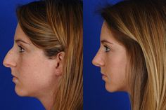 Open Rhinoplasty Before and After -Dr. Matthew Bridges, M.D.