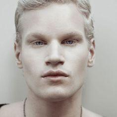 13 Fotos de personas albinas realmente hermosas