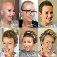1 Year Hair Growth: Chemo Hairless - My Cancer Chic