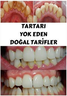 Removing tartar usually required a visit to your dentist, but by applying one of these natural remedies you will be able to remove it yourself in the privacy of your home. Natural Home Remedies, Natural Healing, Herbal Remedies, Health Remedies, Health And Beauty Tips, Health And Wellness, Health Fitness, Beauty Tricks, Dental Health