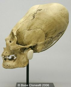 Peruvian elongated skull - to my eye... there is simply too much more structure there to be from just binding.