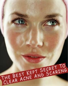 The best kept secret to get rid of acne and acne scars. It really works! Trust me... | Health Beauty And Tips