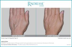 RADIESSE® for Hands in Westchester County, New York