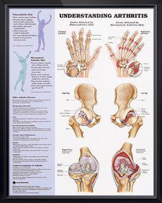 STT joint arthritis: Arthritis develops in the joint at the base ...