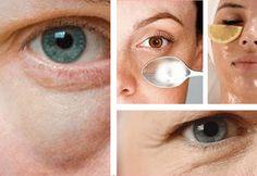 Las bolsas bajo los ojos son antiestéticas y nos hacen lucir cansadas. Diles adiós con estos sencillos trucos naturales que puedes poner en práctica en casa