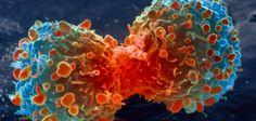 Pourquoi la plupart des cancers ne sont pas la faute à « pas de chance »