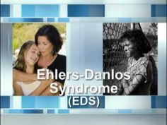 What Is Ehlers-Danlos Syndrome?