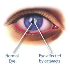 """Natural Cure For Cataract """"#Natural cure for eye, #Eye cure, #Alternative medicine, #Holistic health"""""""