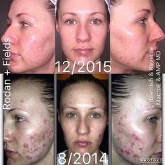 """A BIG thank you to Kathryn Cernis for sharing her before and fabulous after #results from R+F #PremiumSkincare Hear what she had to say about her journey: """"I used to think my skin could only be treated by prescription drugs and under strict supervision of dermatologists and doctors. After failing with Accutane, trying Rodan + Fields was my last resort but I should have tried R+F first I have achieved these results at home with UNBLEMISH, REVERSE, Macro Exfoliator and AMP MD Roller. Even…"""
