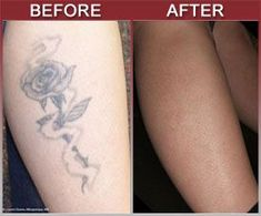 Get Rid Tattoo - Natural Tattoo Removal Solution - http://tattoo-qm50hycs.canitrustthis.com