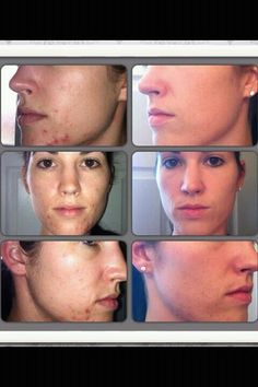 What Nerium can do for acne. This product is AMAZING!!! 30 Day Money back guarantee! www.sarahhood.nerium.com