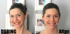 How To Whiten Teeth Naturally With Turmeric