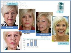 Non-surgical facial transformation using the ageloc transformation system, the galvanic face spa and tru face essence ultra. Nu Skin, Galvanic Spa, Aging Backwards, Best Weight Loss, Face And Body, Anti Aging, Facial, Skin Care, Skin Products