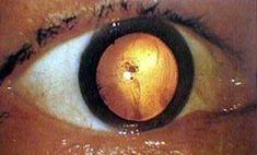 29 – Foto tirada de um olho de uma vitima da bomba atômica, a imagem da explosão ficou marcada em sua pupila como a última coisa