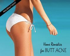 Home remedies for pimples on Back & Bottom