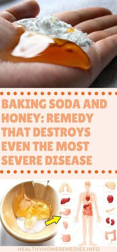 Baking Soda And Honey: Remedy That Destroys Even The Most Severe Disease – Healthy Home Remedies