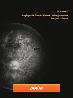angiografia-fluoresceinowa-oraz-indocyjaninowa2