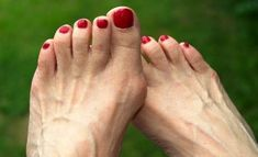 These are important bunion treatment advice from simple bunion treatments to bunion surgery. Learn the best methods to treat your bunion. Get Rid Of Bunions, Bunion Pads, Bunion Surgery, How To Cure Gout, Calf Muscles, Best Running Shoes, Foot Pain, Feet Care, Metabolism