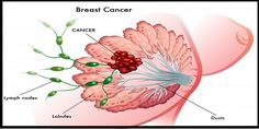 Breast Cancer And Lymph Nodes Status