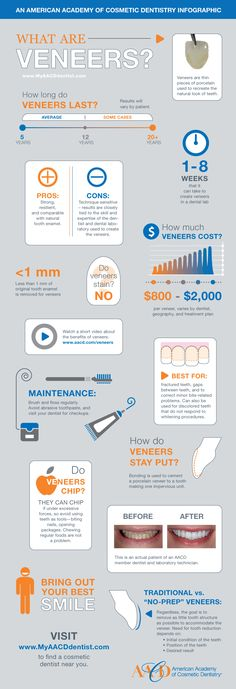 AACD Veneer Infographic-Contact Dr. Anna Berik for the best in cosmetic dentistry and life-like veneers