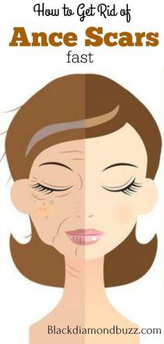 Wacholderbeere ätherisches Öl Natural Für Aromatherapie Hautpflege & Haarpflege Finely Processed Beauty & Gesundheit Natur- & Alternativheilmittel