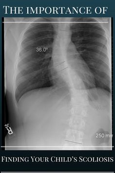 Scoliosis is a disorder in which the spine is curving to one side or the other, as opposed to being straight. Scoliosis can develop from several different identifying factors. It can be caused by a congenital factor which is a defect a child is born with. The cause can be degenerative which can be the result of an accident or trauma. The factor responsible can be neuromuscular from a disorder of the muscles or nerve fibers.