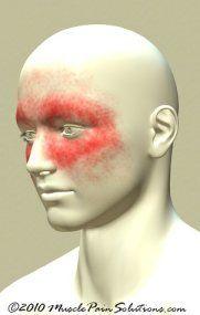 Chronic Sinus Headaches, muscle trigger points esp scm