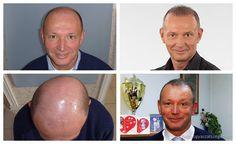 """Győrfi Pál - 4000+ hajszál beültetése - HIMG Klinika  """"Azért kerestem fel a HIMG Klinikát, mert hazánkban ez az egyetlen Hajklinika, amely olyan újfajta módszert alkalmaz, amely már számomra is meggyőző ahhoz, hogy belevágjak egy hajbeültetésbe.""""  http://hajgyogyaszatszeged.hu/"""