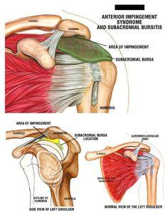 shoulder impingement | ... , depicting Shoulder Impingement Syndrome and Subacromial Bursitis