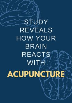 What acupuncture does to your brain - check this out! #AcupunctureWorks #Acupuncturebenefits #tcm #traditionalchinesemedicine #acupuncturecasestudy