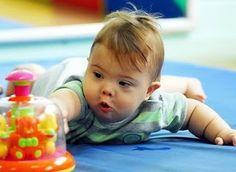 A Síndrome de Down (SD) é essencialmente um atraso no desenvolvimento, tanto das funções motoras do corpo, como das funções mentais. Um bebê com...