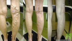 Cura tus varices con zanahoria, aloe vera y vinagre de manzana Cure your varicose veins with carrot, aloe vera and apple cider vinegar Varicose Vein Remedy, Varicose Veins, Health Remedies, Home Remedies, Natural Remedies, Health And Beauty, Health And Wellness, Health Heal, Natural Treatments