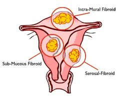 Even though most fibroids don't show symptoms, they can grow in size and cause heavy and painful menstruation, painful sexual intercourse, and increased urinary frequency and urgency. Read more about a solution that can help you get rid of uterine fibroids the all-natural way.  Click here now! - http://get-rid-of.biz/Get_Rid_Of_Fibroids_Naturally.html