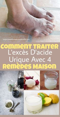 Le Psoriasis, Circulation Sanguine, Natural Medicine, Detox, Health Fitness, Healing, Personal Care, Beauty, Butterfly