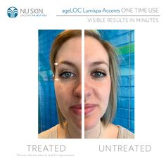 Say goodbye's to dark circles, bags and puffiness❗👍👌🤩 All Natural Skin Care, Anti Aging Skin Care, Nu Skin Ageloc, Skin Photo, Skin Routine, Clean Face, Radiant Skin, Perfect Skin, Facial Cleanser